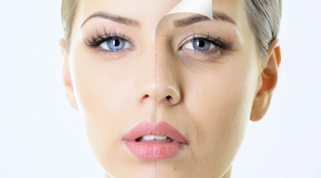 Best At Home Laser Treatment for Wrinkles 2016 Reviews