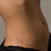 Best Stretch Mark Removal Creams